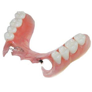 Tooth Replacement Beecroft, Denture Clinic Strathfield, Metal & Flexible Dentures North Shore